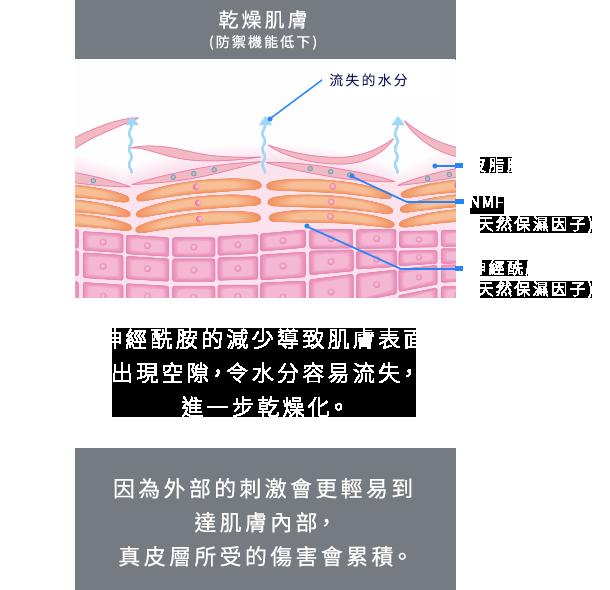 乾燥肌のイメージ<バリア機能の低下>