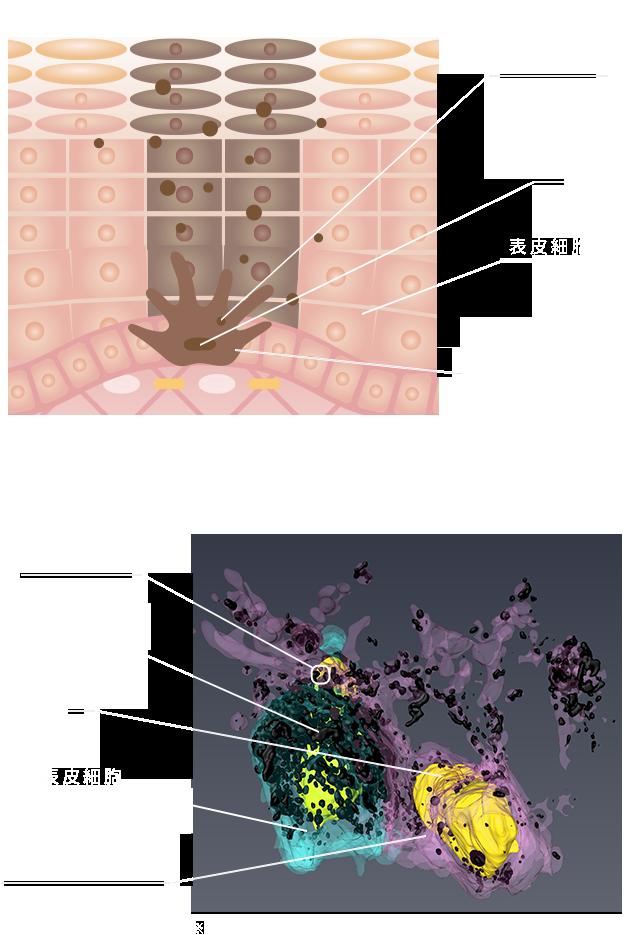 一般的な模式図と3D解析 比較図